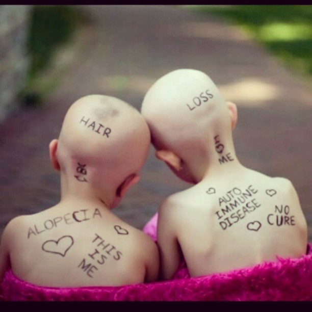 children with hair loss